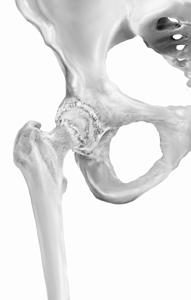 Arthritic hip with osteophytes - Orthopaedics New England - Dr. Keggi - Dr. Kennon - hip replacement - hip resurfacing